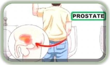 Doc7 prostateb