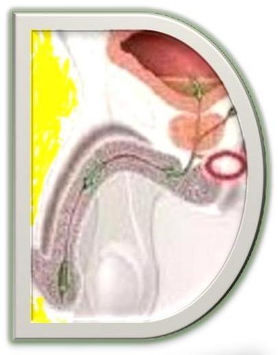 Doc7 prostatee